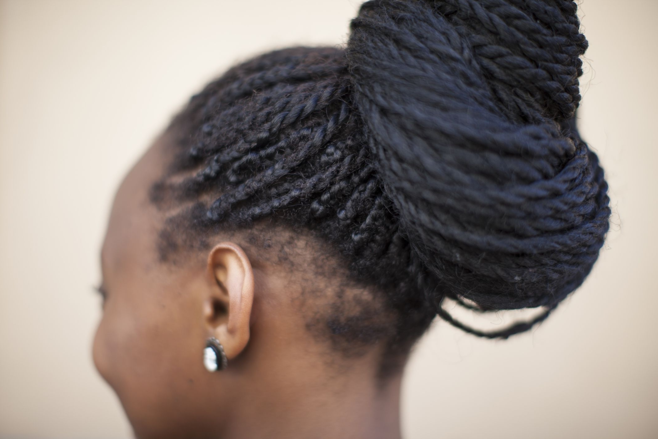 Most Recently Released Cornrows Hairstyles For Weak Edges Pertaining To Fixing Breakage At The Nape Area (View 14 of 15)