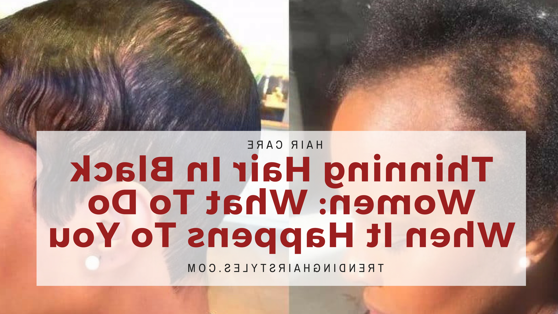 Most Popular Medium Hairstyles For African American Women With Thin Hair Intended For Thinning Hair In Black Women: What To Do When It Happens To You (View 9 of 20)