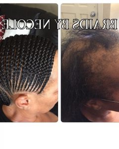 Braided Hairstyles Cover Bald Edges